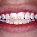 Fluoride Does Not Reduce Tooth Decay- But THIS Does!